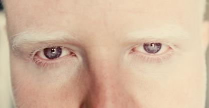 Albinos: la luz y el sol como enemigos